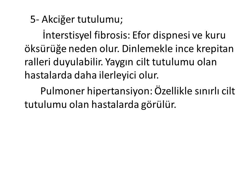 5- Akciğer tutulumu; İnterstisyel fibrosis: Efor dispnesi ve kuru öksürüğe neden olur.