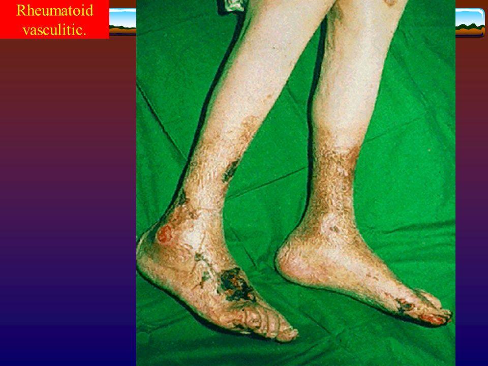 Rheumatoid vasculitic.