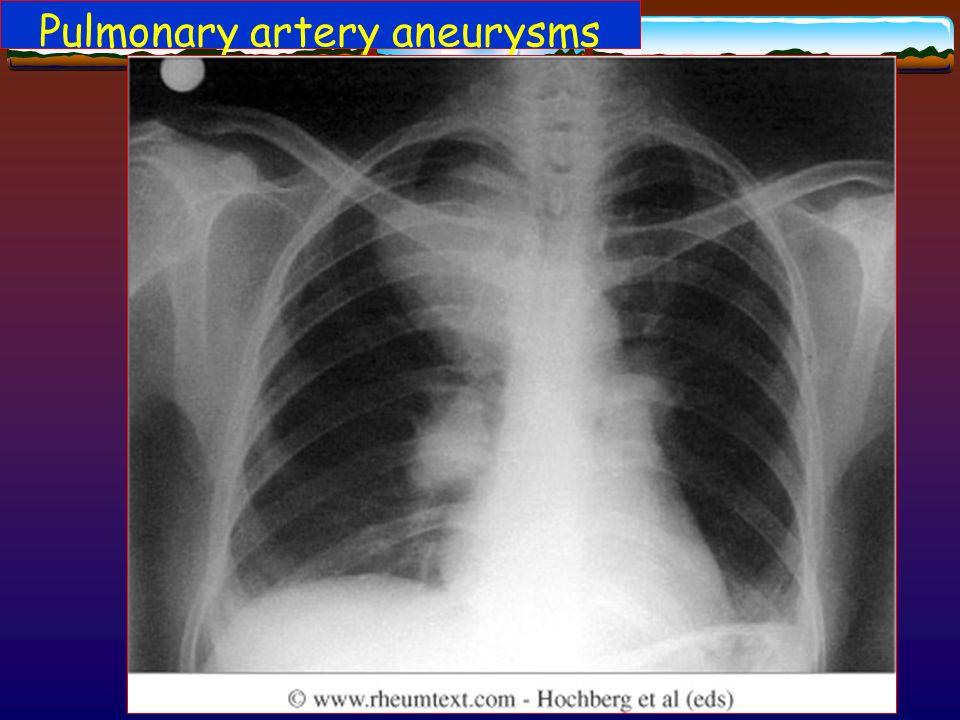 Pulmonary artery aneurysms