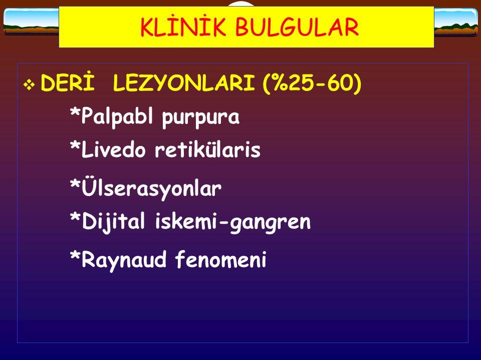 KLİNİK BULGULAR DERİ LEZYONLARI (%25-60) *Palpabl purpura *Livedo retikülaris. *Ülserasyonlar *Dijital iskemi-gangren.