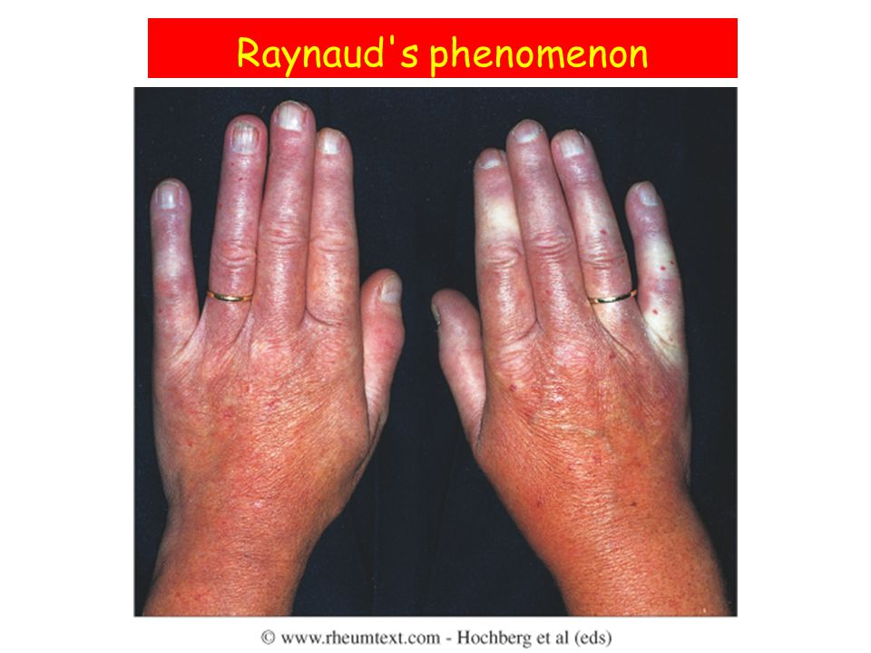 Raynaud s phenomenon