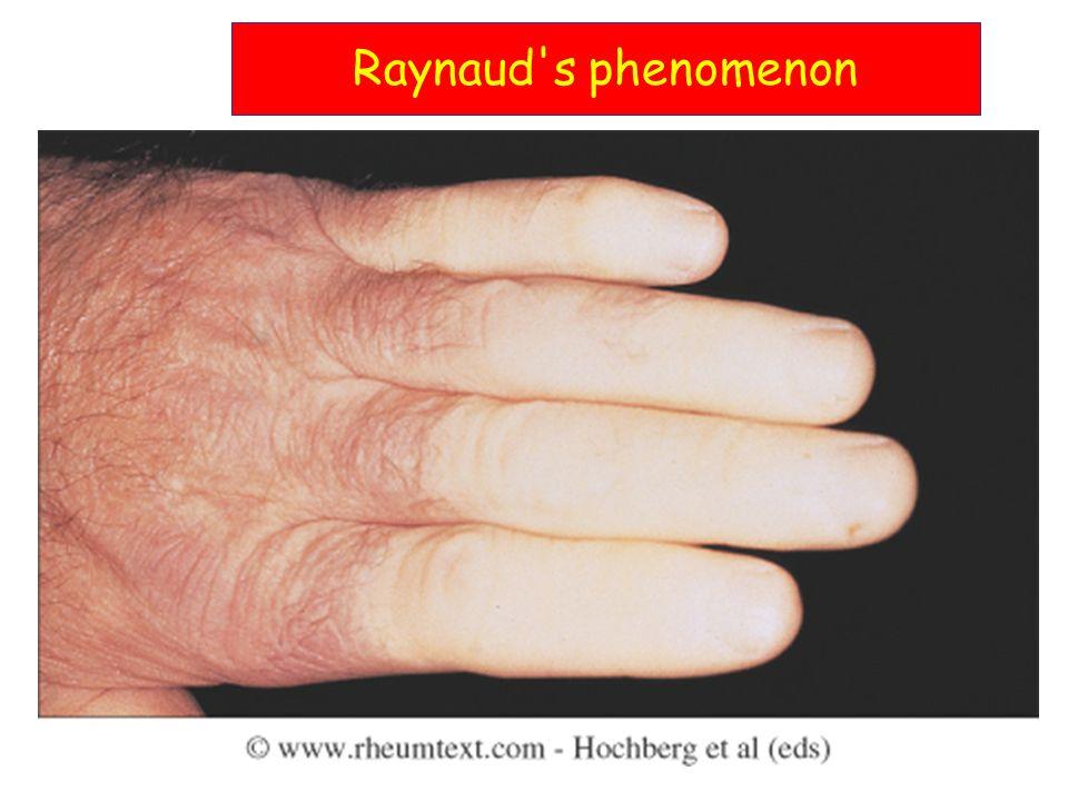 Raynaud s phenomenon