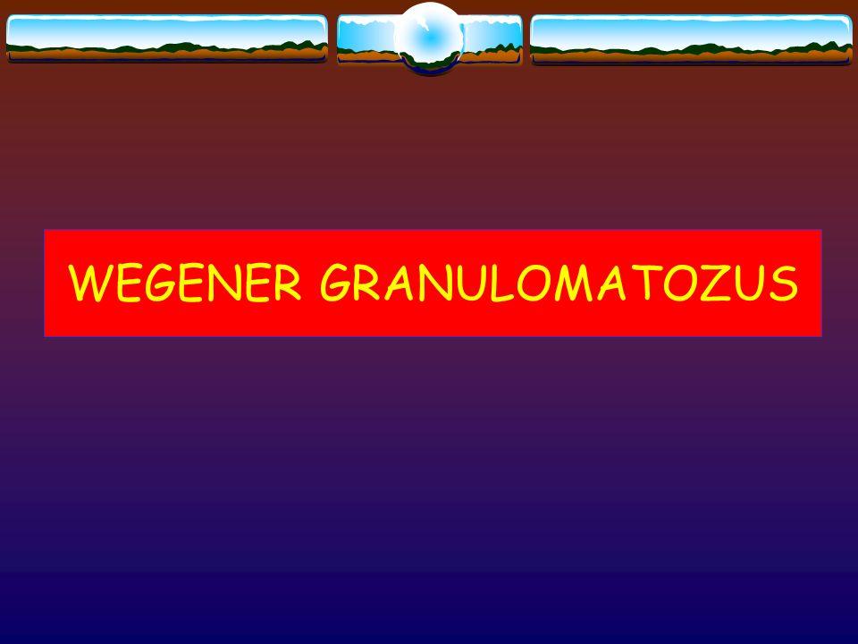 WEGENER GRANULOMATOZUS