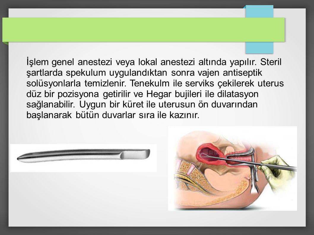 İşlem genel anestezi veya lokal anestezi altında yapılır