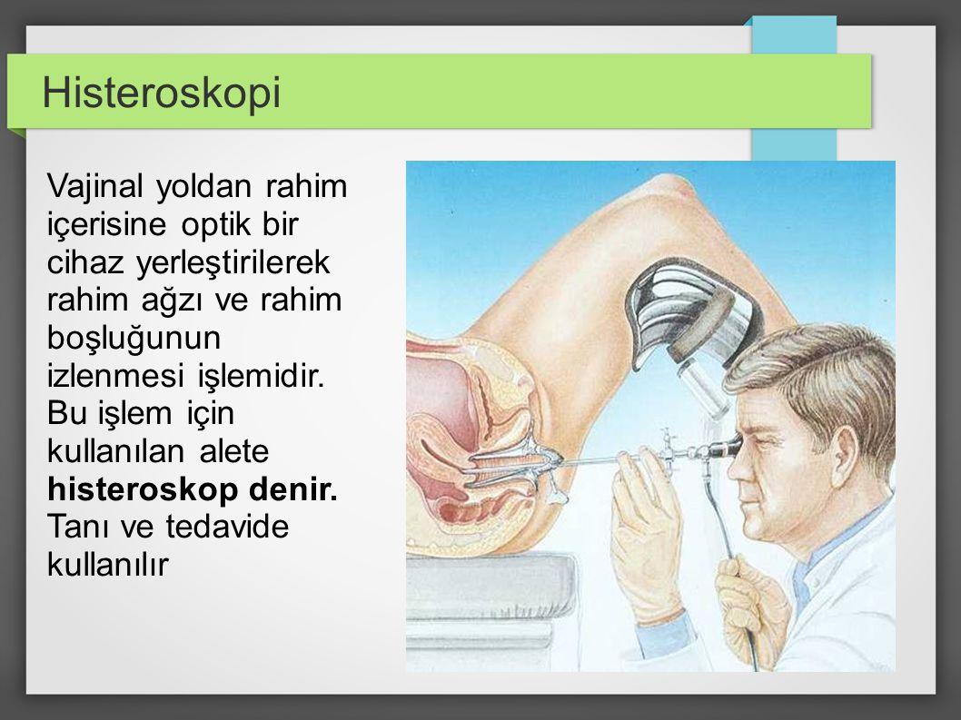 Histeroskopi