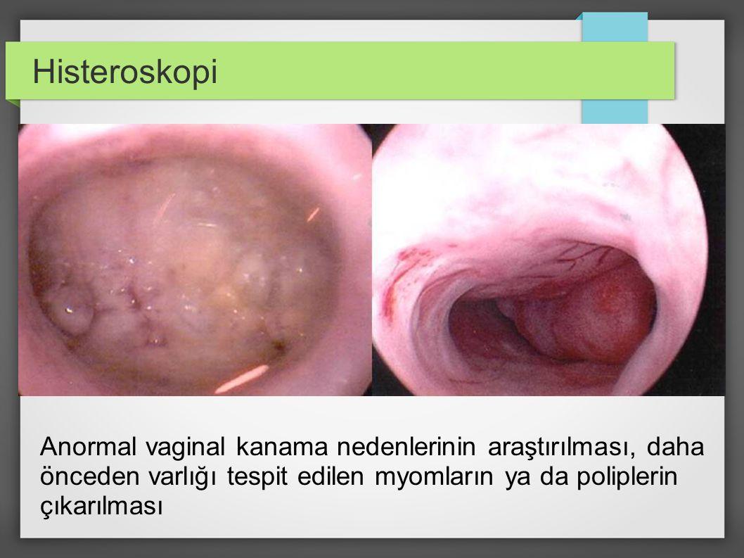 Histeroskopi Anormal vaginal kanama nedenlerinin araştırılması, daha önceden varlığı tespit edilen myomların ya da poliplerin çıkarılması.