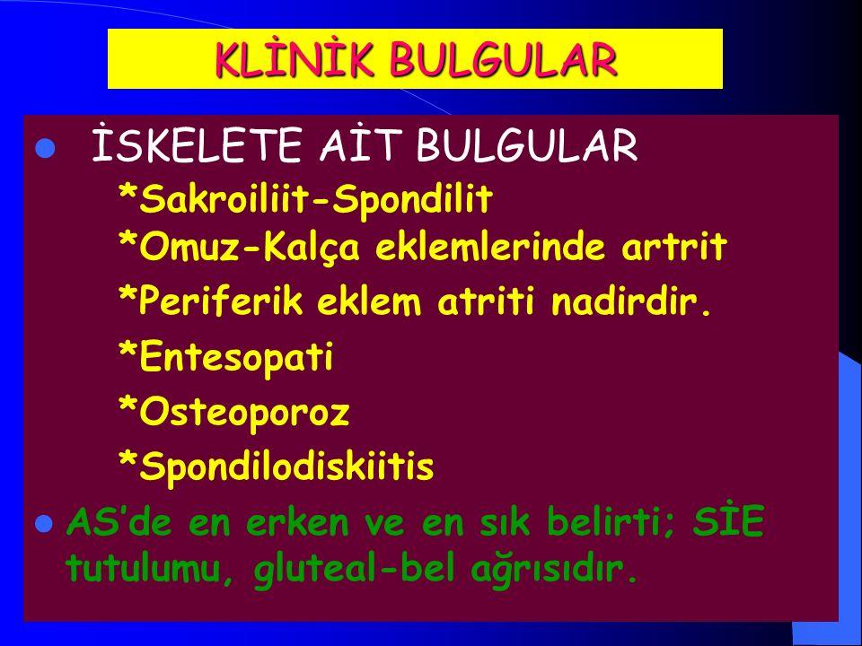 KLİNİK BULGULAR İSKELETE AİT BULGULAR *Sakroiliit-Spondilit *Omuz-Kalça eklemlerinde artrit. *Periferik eklem atriti nadirdir.