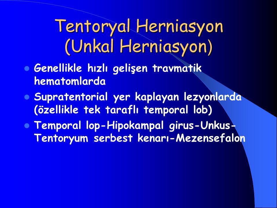 Tentoryal Herniasyon (Unkal Herniasyon)