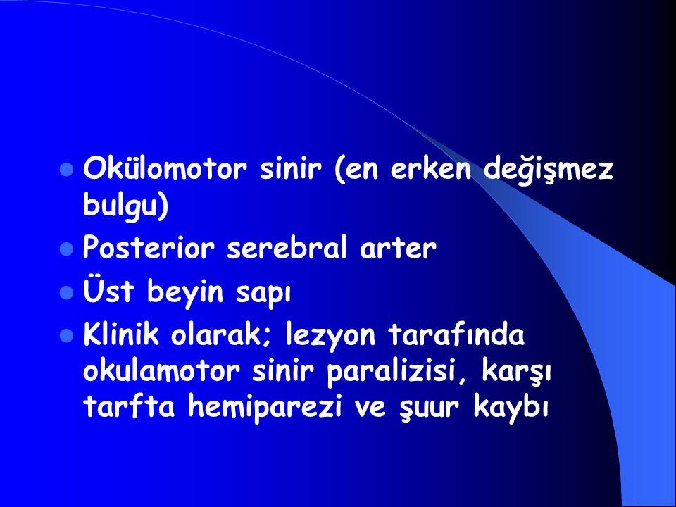 Okülomotor sinir (en erken değişmez bulgu)