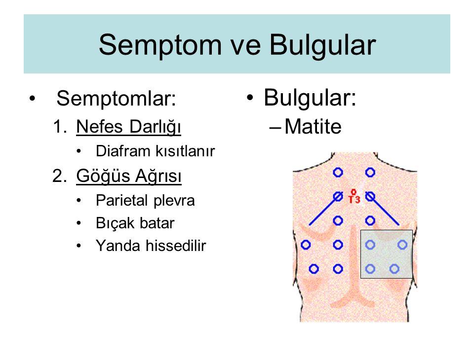 Semptom ve Bulgular Bulgular: Semptomlar: Matite Nefes Darlığı