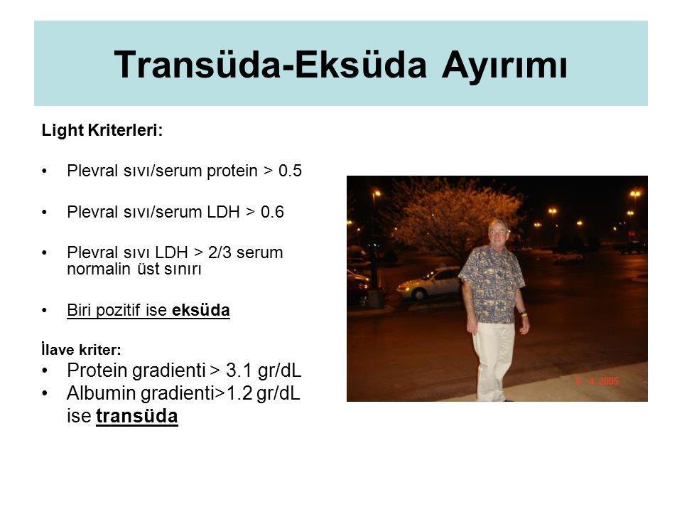 Transüda-Eksüda Ayırımı