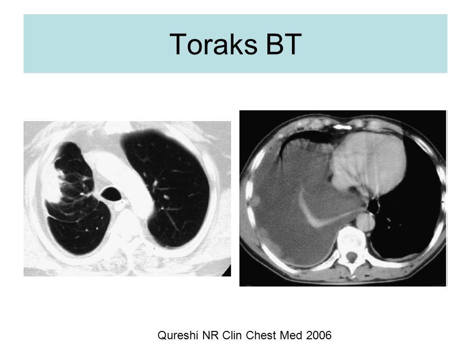 Toraks BT Qureshi NR Clin Chest Med 2006