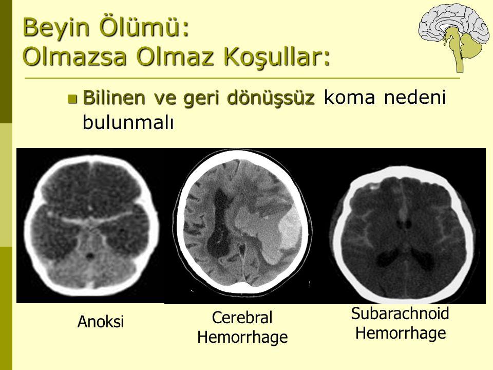 Beyin Ölümü: Olmazsa Olmaz Koşullar: