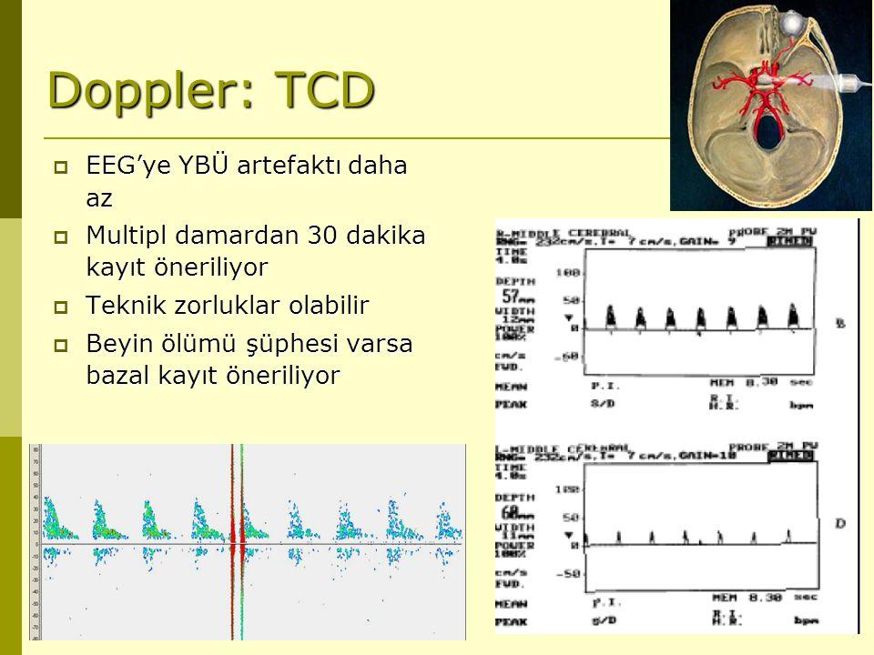 Doppler: TCD EEG'ye YBÜ artefaktı daha az