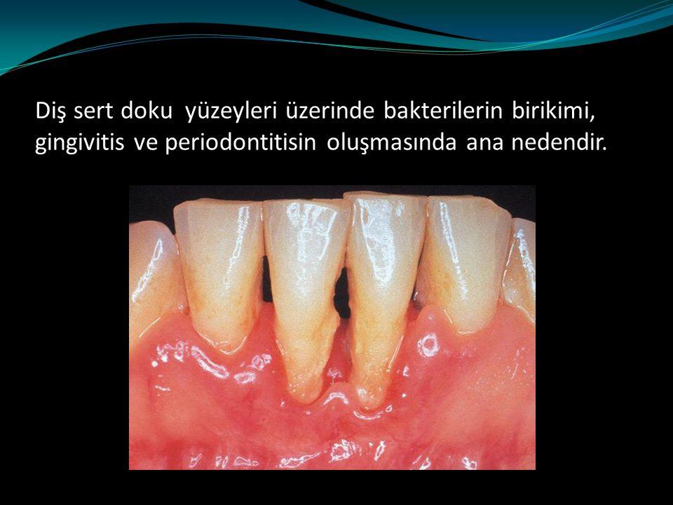 Diş sert doku yüzeyleri üzerinde bakterilerin birikimi, gingivitis ve periodontitisin oluşmasında ana nedendir.