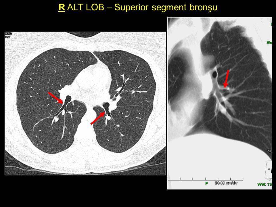 R ALT LOB – Superior segment bronşu
