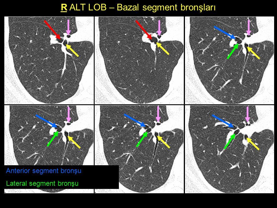 R ALT LOB – Bazal segment bronşları