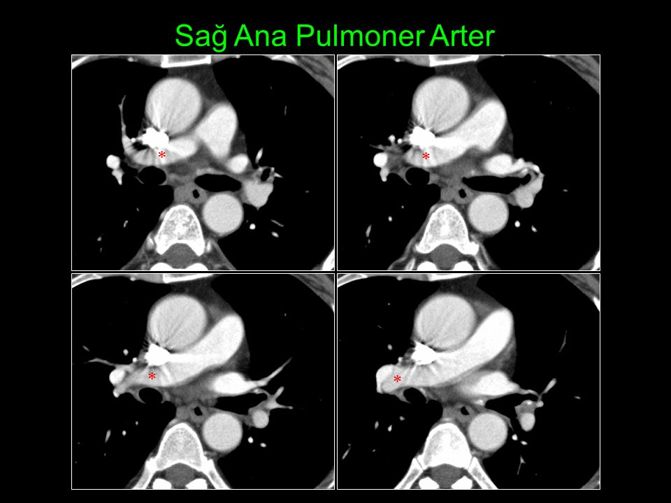 Sağ Ana Pulmoner Arter    