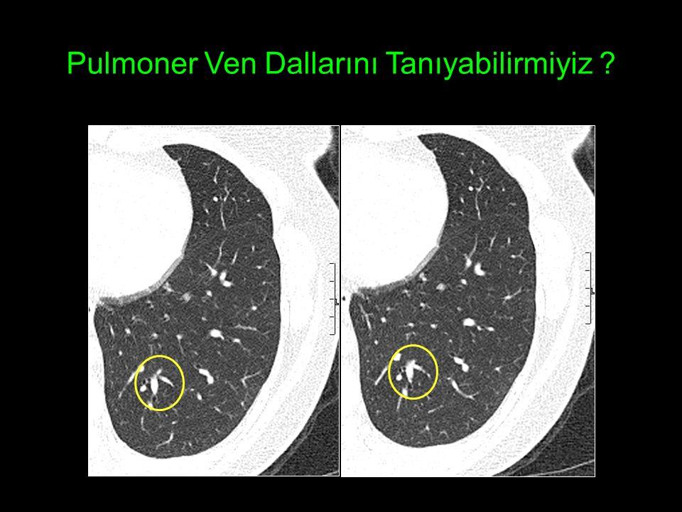 Pulmoner Ven Dallarını Tanıyabilirmiyiz