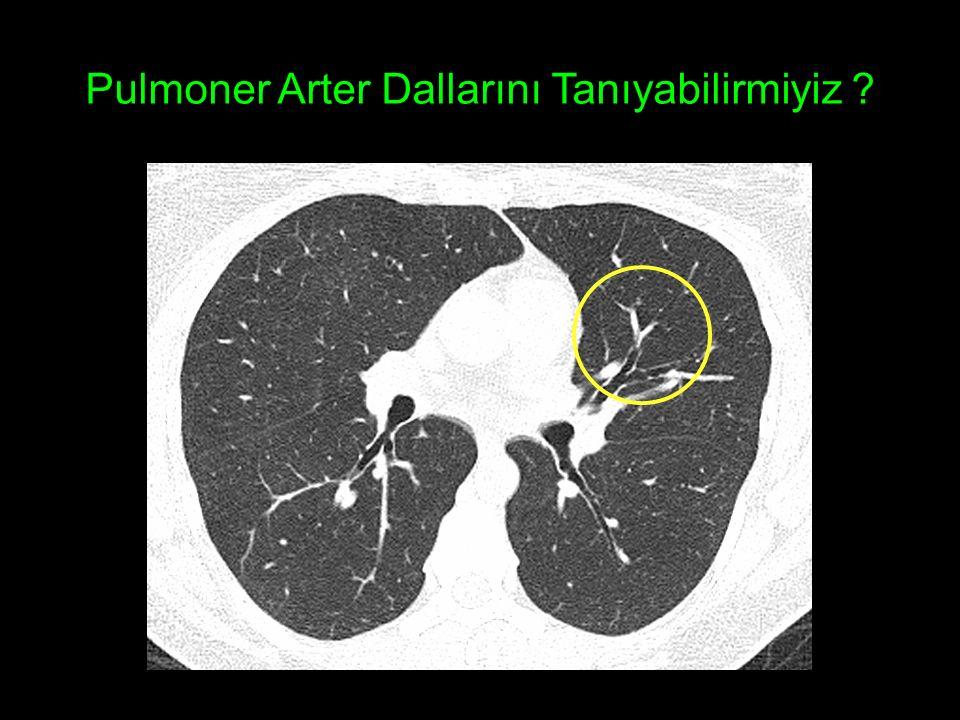 Pulmoner Arter Dallarını Tanıyabilirmiyiz