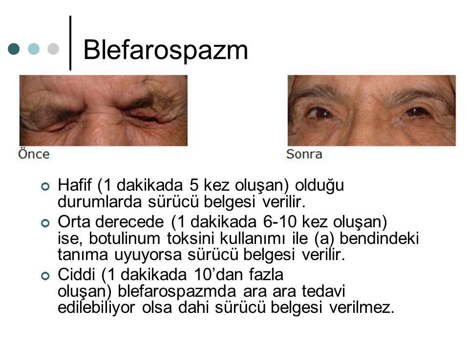 Blefarospazm Hafif (1 dakikada 5 kez oluşan) olduğu durumlarda sürücü belgesi verilir.