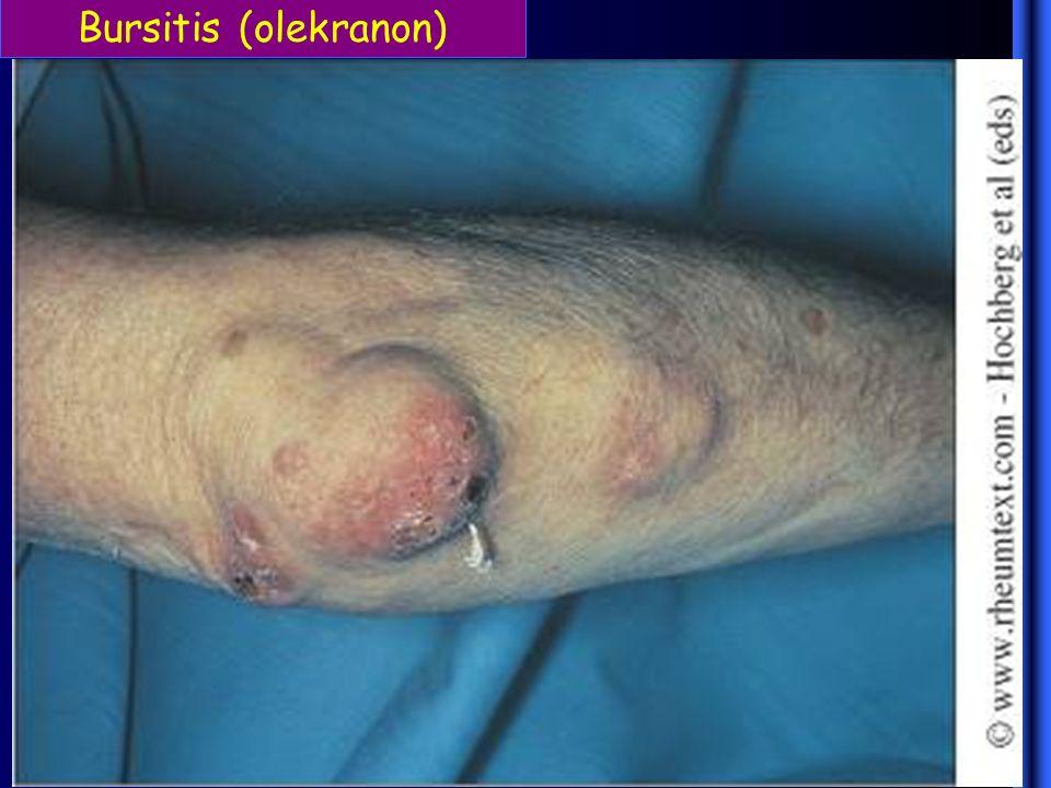 Bursitis (olekranon)