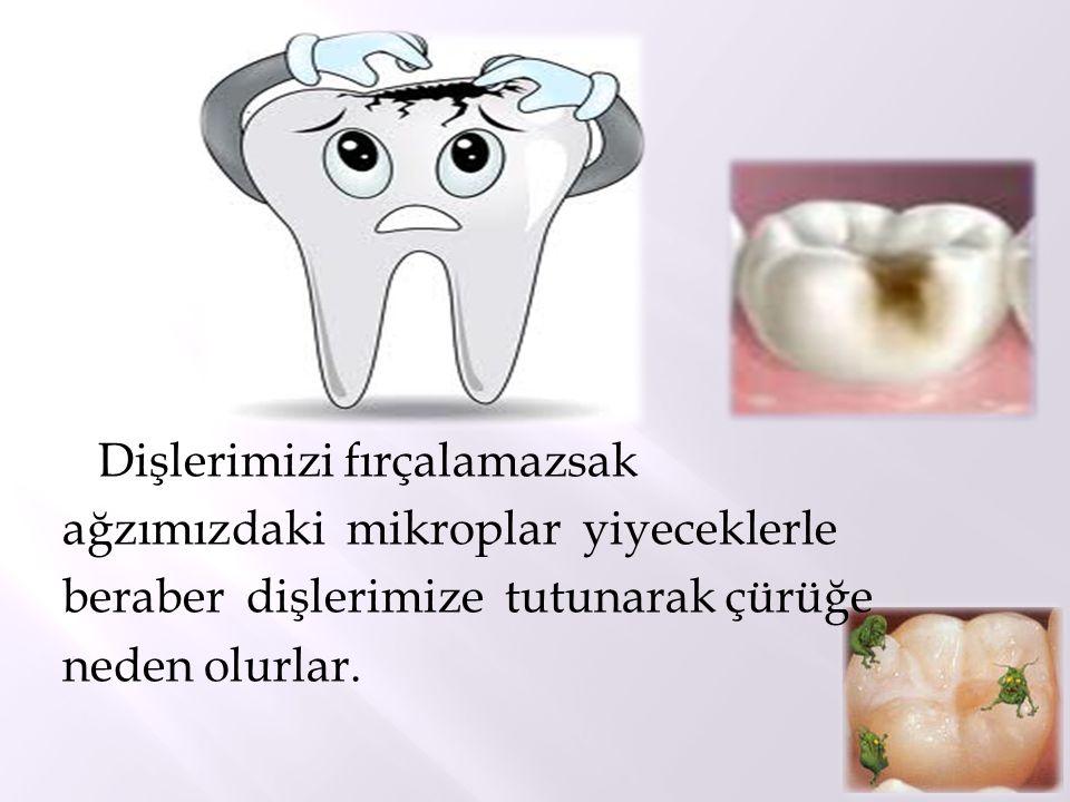Dişlerimizi fırçalamazsak ağzımızdaki mikroplar yiyeceklerle beraber dişlerimize tutunarak çürüğe neden olurlar.
