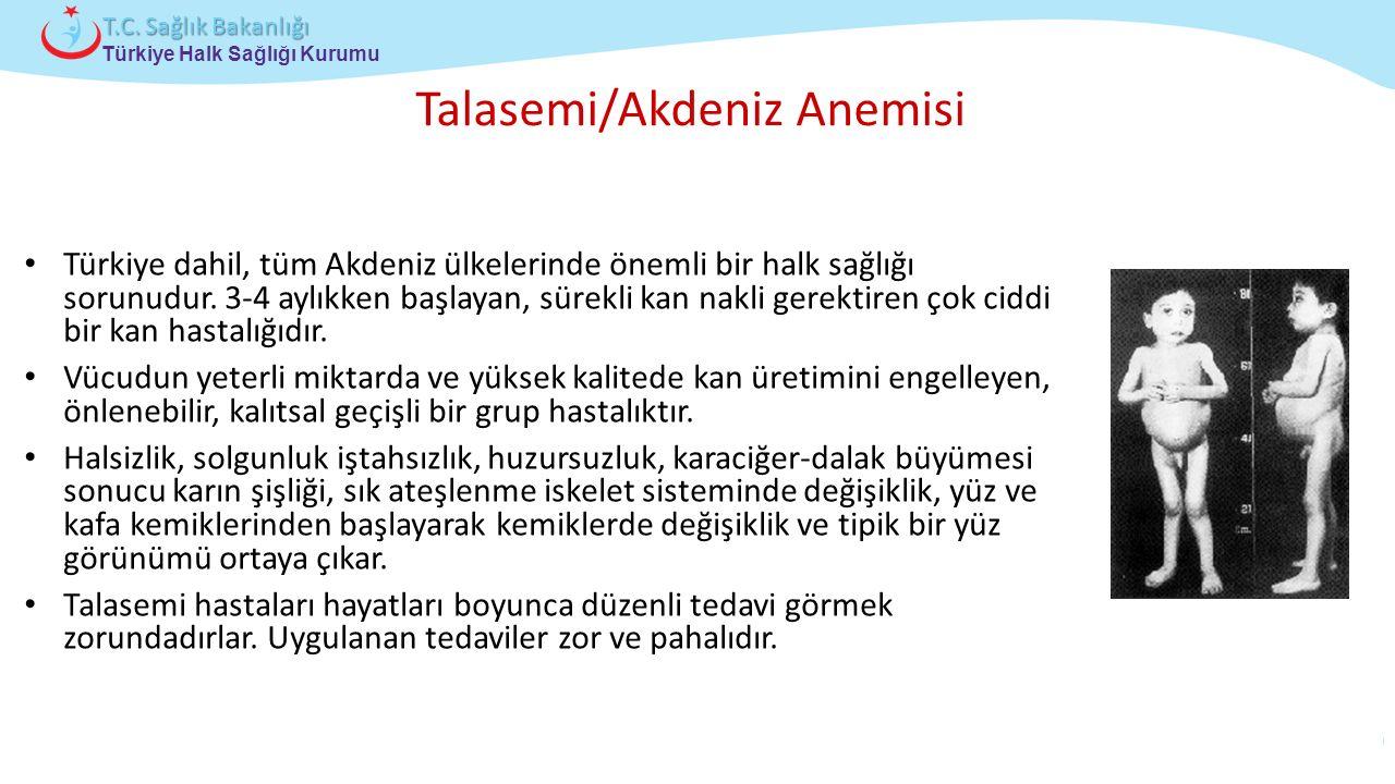 Talasemi/Akdeniz Anemisi