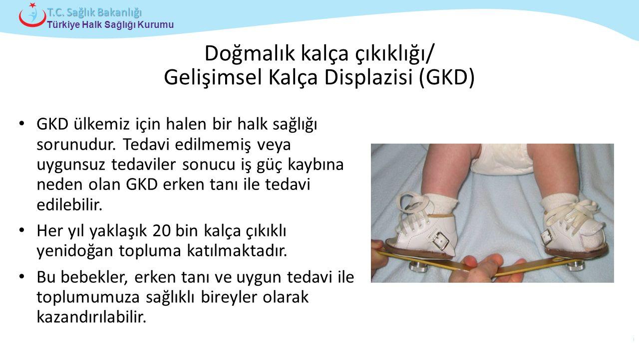Doğmalık kalça çıkıklığı/ Gelişimsel Kalça Displazisi (GKD)