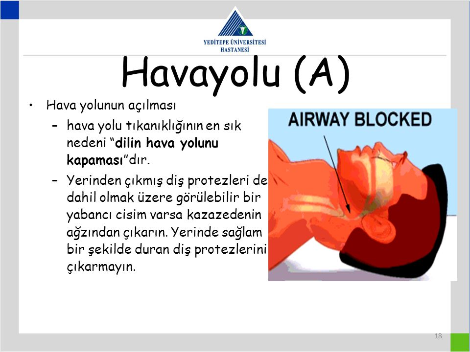 Havayolu (A) Hava yolunun açılması
