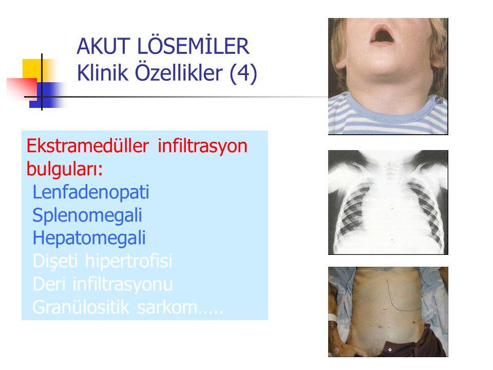 AKUT LÖSEMİLER Klinik Özellikler (4)