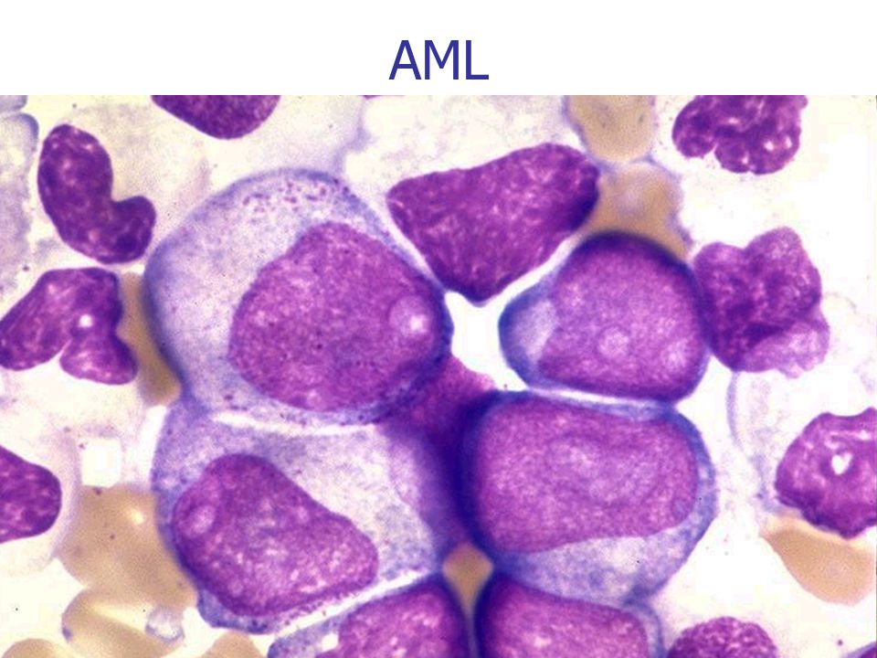 AML 22