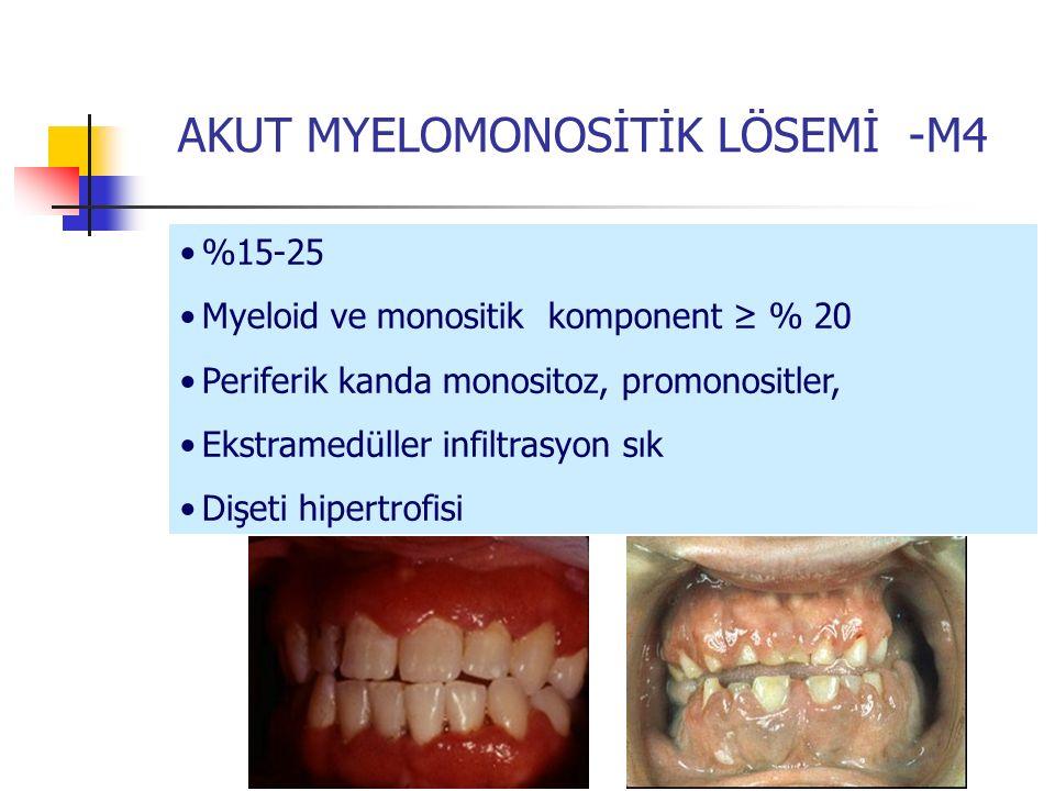 AKUT MYELOMONOSİTİK LÖSEMİ -M4