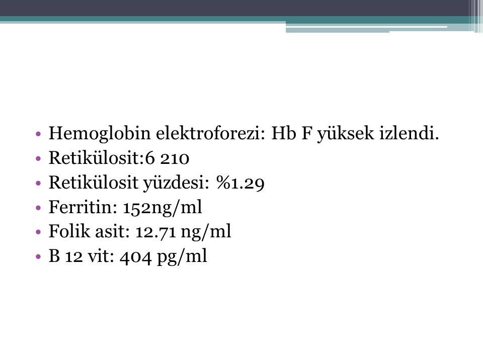 Hemoglobin elektroforezi: Hb F yüksek izlendi.
