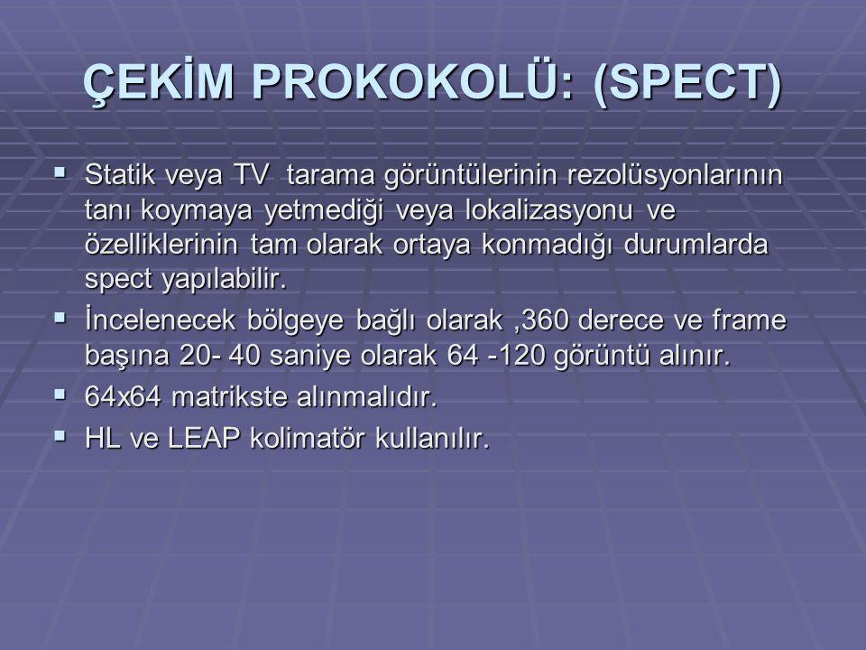 ÇEKİM PROKOKOLÜ: (SPECT)