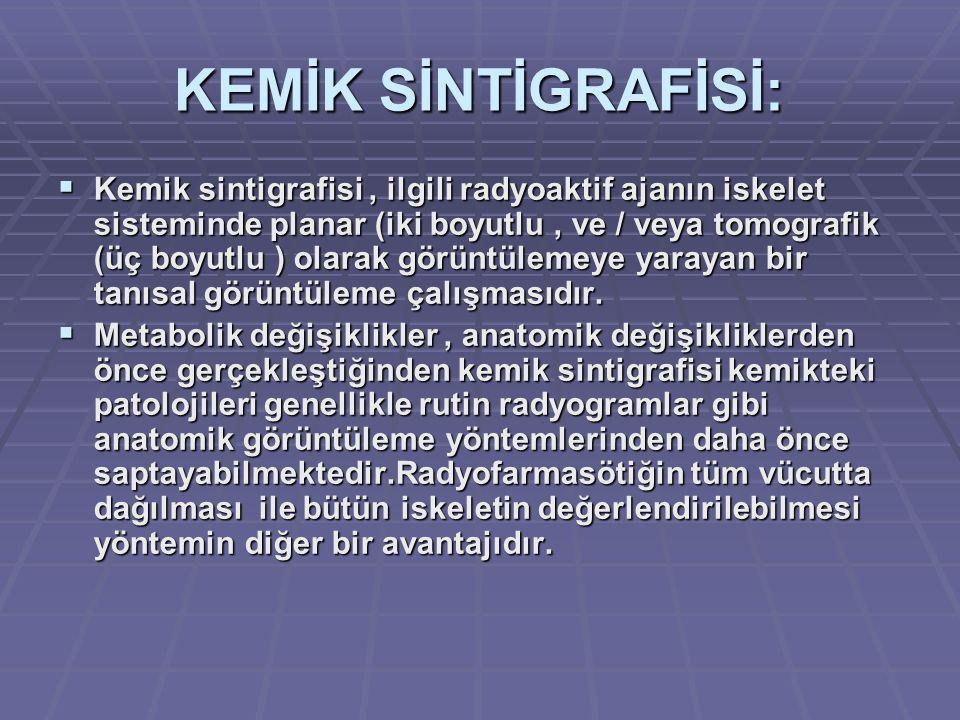 KEMİK SİNTİGRAFİSİ: