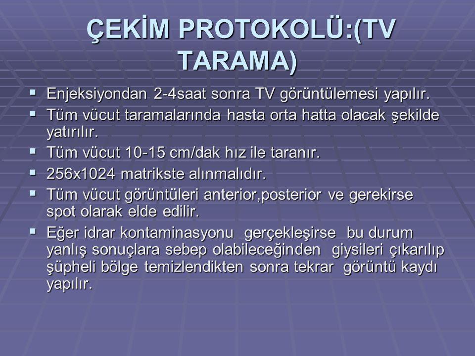 ÇEKİM PROTOKOLÜ:(TV TARAMA)