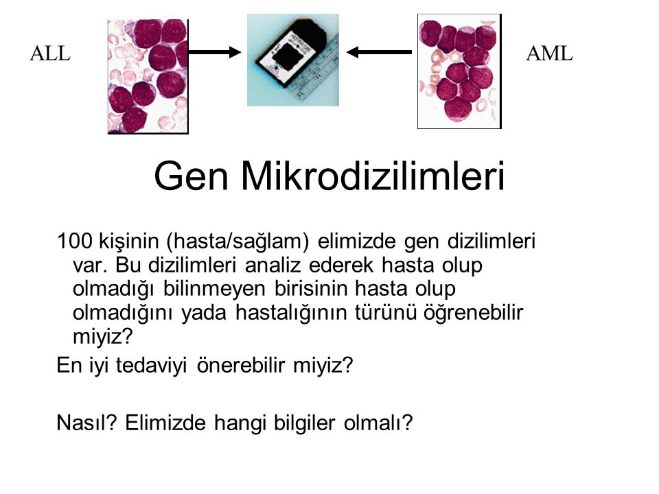 Gen Mikrodizilimleri ALL AML