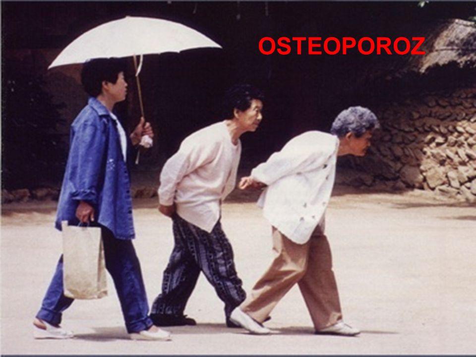OSTEOPOROZ Osteoporoz