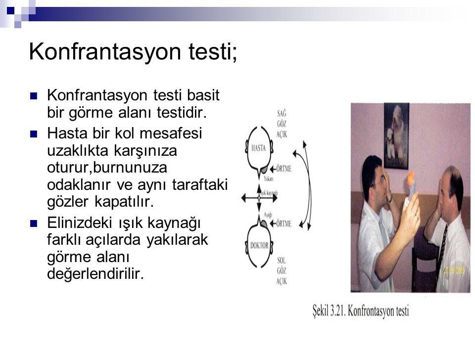 Konfrantasyon testi; Konfrantasyon testi basit bir görme alanı testidir.