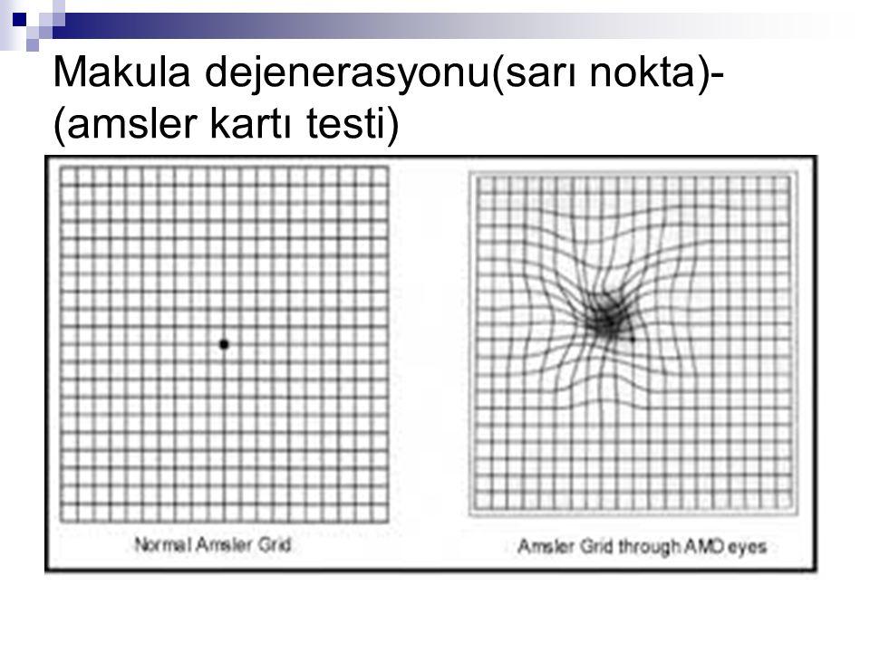 Makula dejenerasyonu(sarı nokta)-(amsler kartı testi)