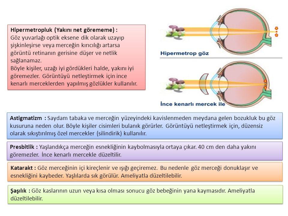 Hipermetropluk (Yakını net görememe) :