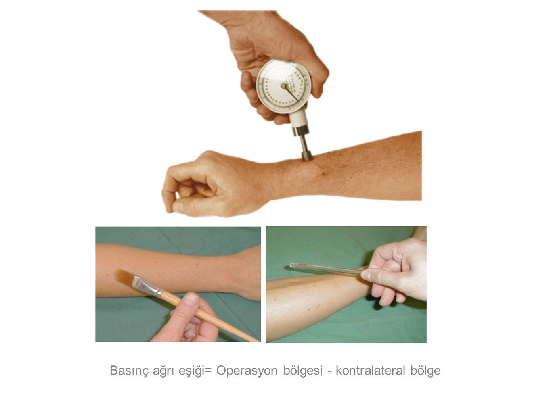 Basınç ağrı eşiği= Operasyon bölgesi - kontralateral bölge
