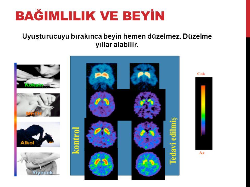 Uyuşturucuyu bırakınca beyin hemen düzelmez. Düzelme yıllar alabilir.