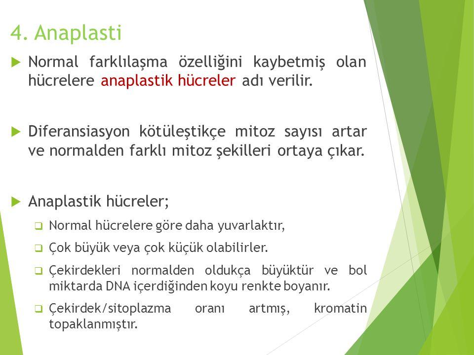 4. Anaplasti Normal farklılaşma özelliğini kaybetmiş olan hücrelere anaplastik hücreler adı verilir.