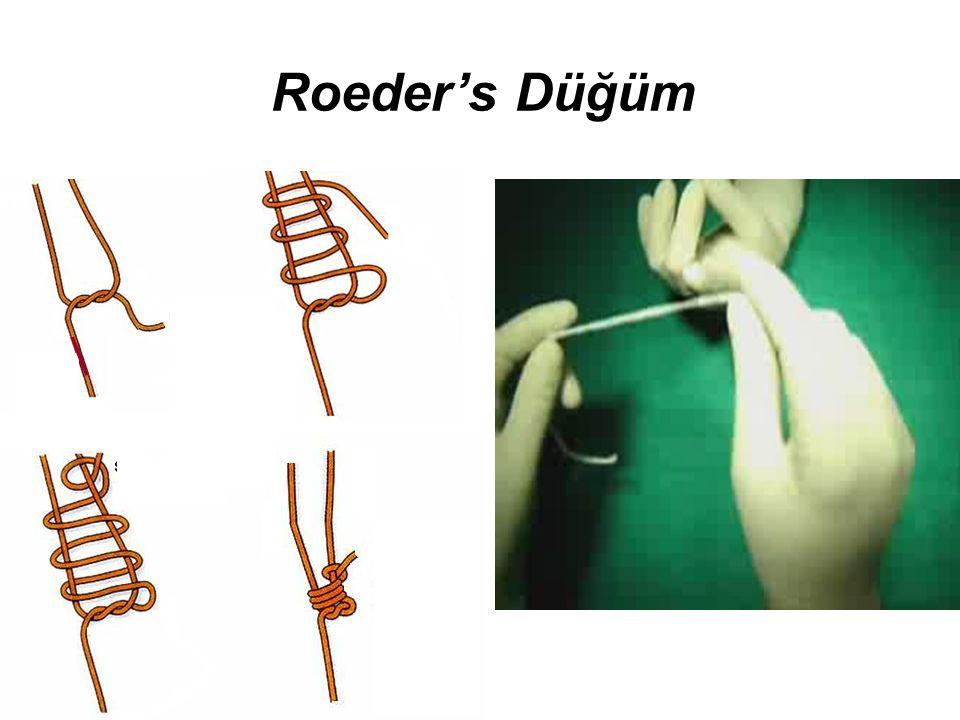 Roeder's Düğüm
