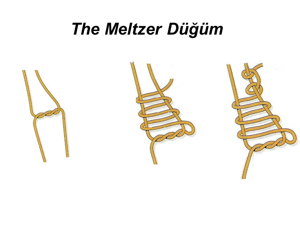 The Meltzer Düğüm