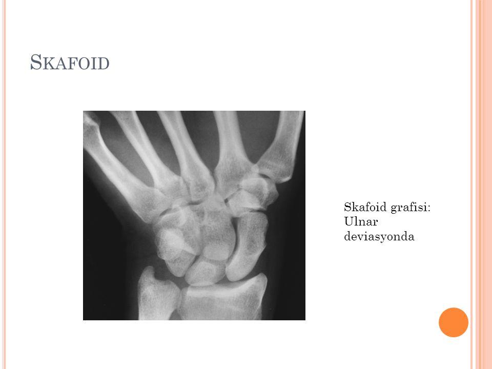 Skafoid Skafoid grafisi: Ulnar deviasyonda