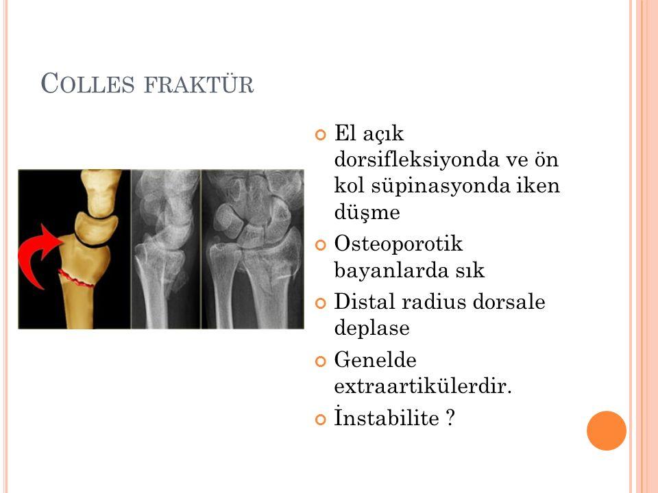 Colles fraktür El açık dorsifleksiyonda ve ön kol süpinasyonda iken düşme. Osteoporotik bayanlarda sık.