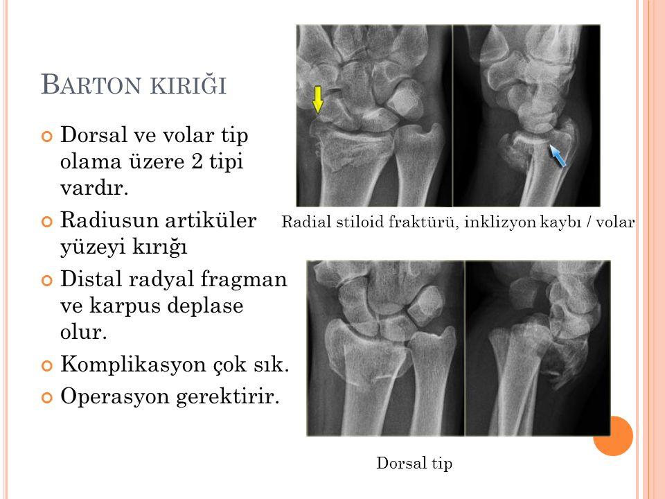 Barton kiriği Dorsal ve volar tip olama üzere 2 tipi vardır.